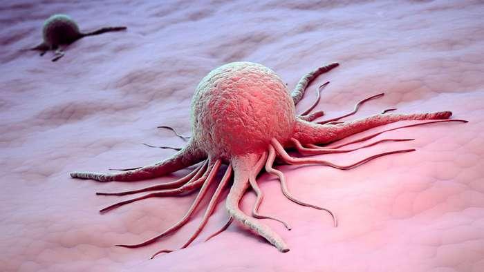 Мифы и заблуждения об онкологии
