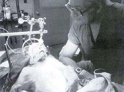 Трансплантация головы обезьяны. Эксперимент Роберта Уайта
