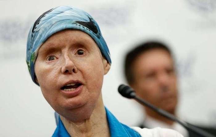 Пять лет спустя: чем закончилась первая в мире полная пересадка лица