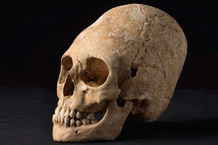 Красота требует жертв: 10 исторических примеров деформации черепов древними людьми