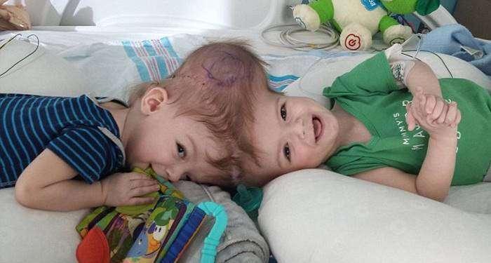 В США успешно разделили близнецов-краниопагов