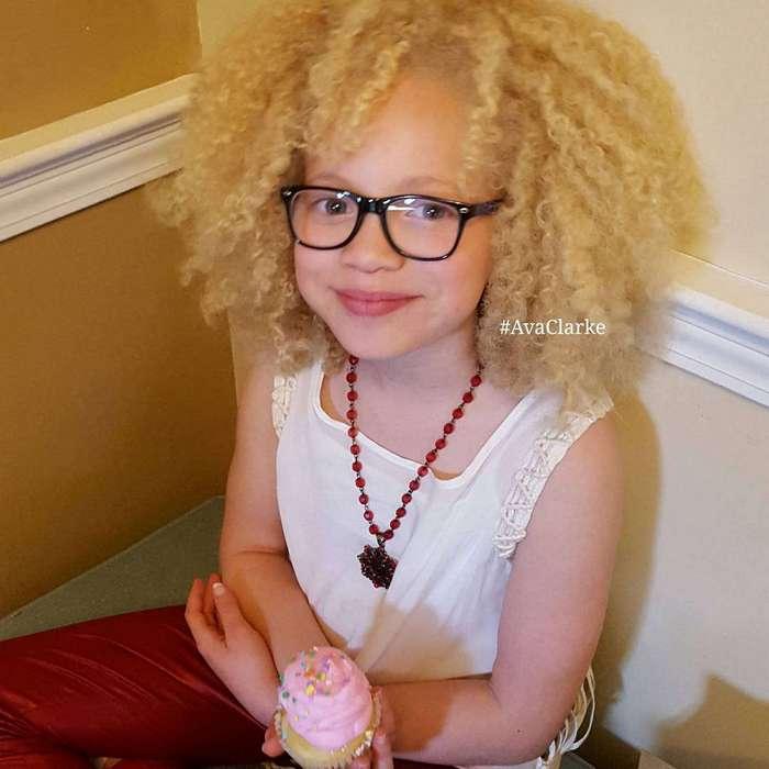 Афроамериканская девочка-альбинос покоряет мир моды