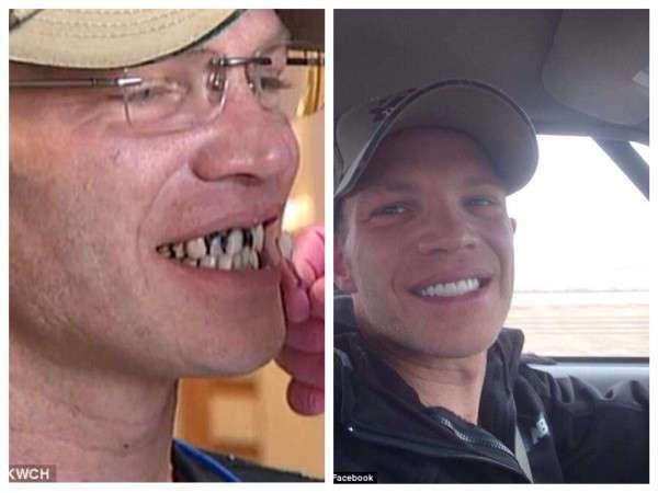 Незнакомец оставил «на чай» $25 000, на которые официант сделал зубы