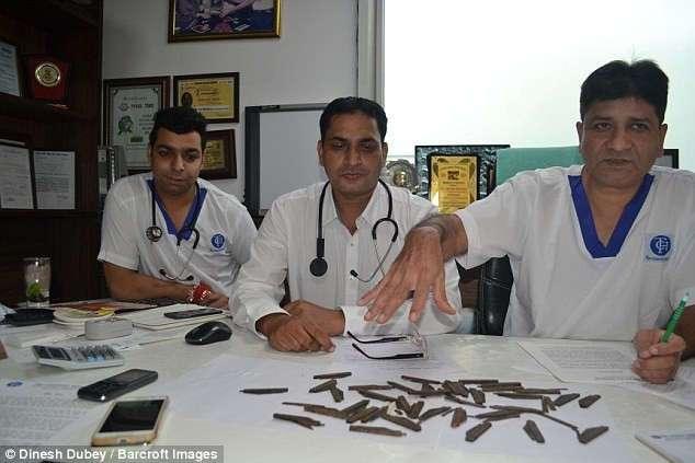 Индиец проглотил 40 ножей, потому что ему понравился их вкус