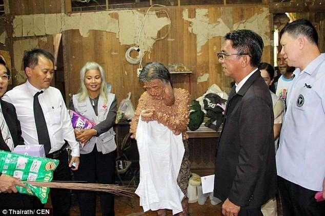 Обезображенный отшельник появился на публике впервые за 45 лет, чтобы почтить память короля