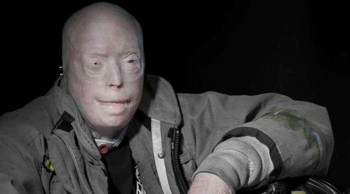 Патрик Хардисон: человек без лица получил новую личность