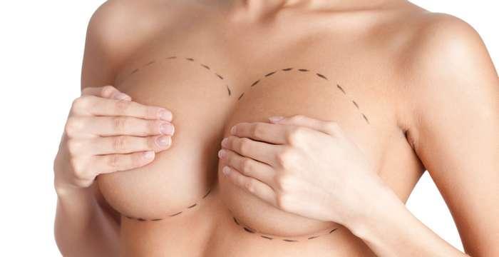 5 занимательных фактов о грудных имплантатах