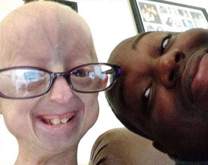 12-летняя девочка, борющаяся с редким заболеванием, подружилась с тяжелоатлетом по прозвищу