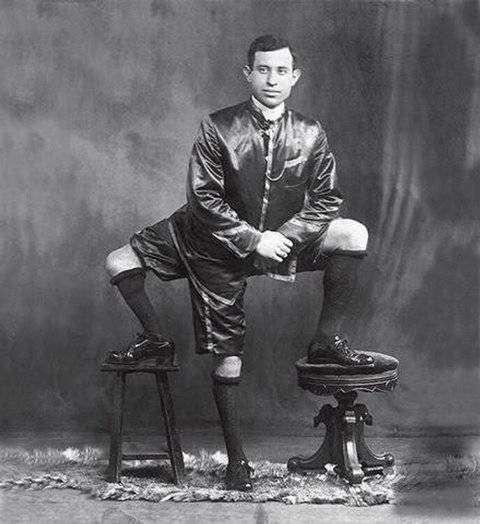 Невероятно, но факт — человек с тремя ногами
