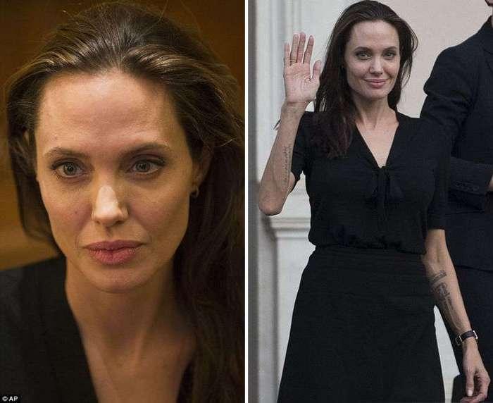 От Анджелины Джоли до Аллы Пугачевой. Внезапно похудевшие знаменитости