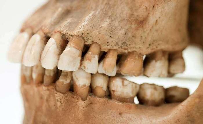 Почему вы скрипите зубами во сне и как с этим бороться