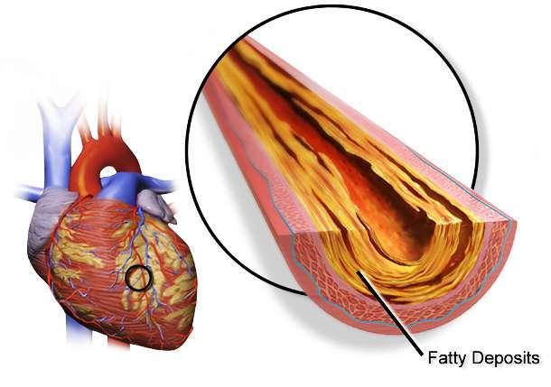 Всё, что вам нужно знать про холестерин