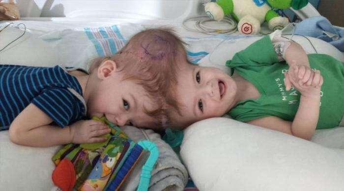Разделенные сиамские близнецы впервые посмотрели друг на друга (6 фото)