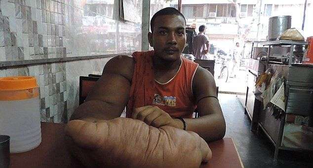 Индийца с огромной рукой родственники выгнали из дома, окрестив дитям дьявола