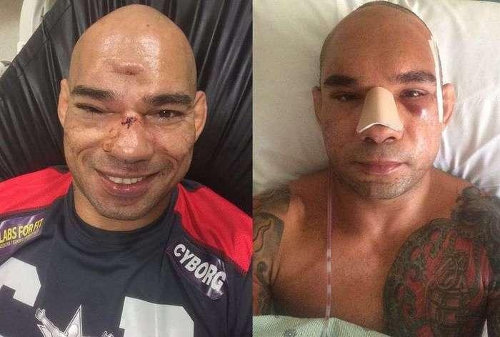 Проломленный череп бойца MMA до и после операции