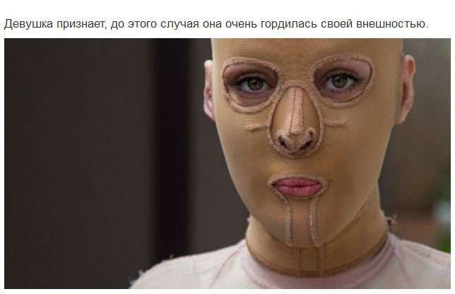 Красавица показала миру изувеченное после покушения лицо (16 фото)
