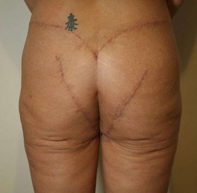 Зaд женщины после крайне неудачной операции по подтяжке (6 фото)