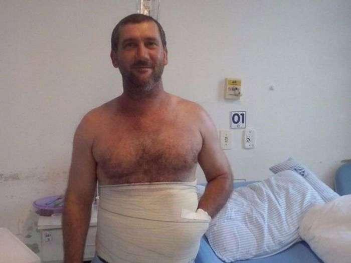 Хирурги спасли руку мужика, зашив ее в живот (2 фото)