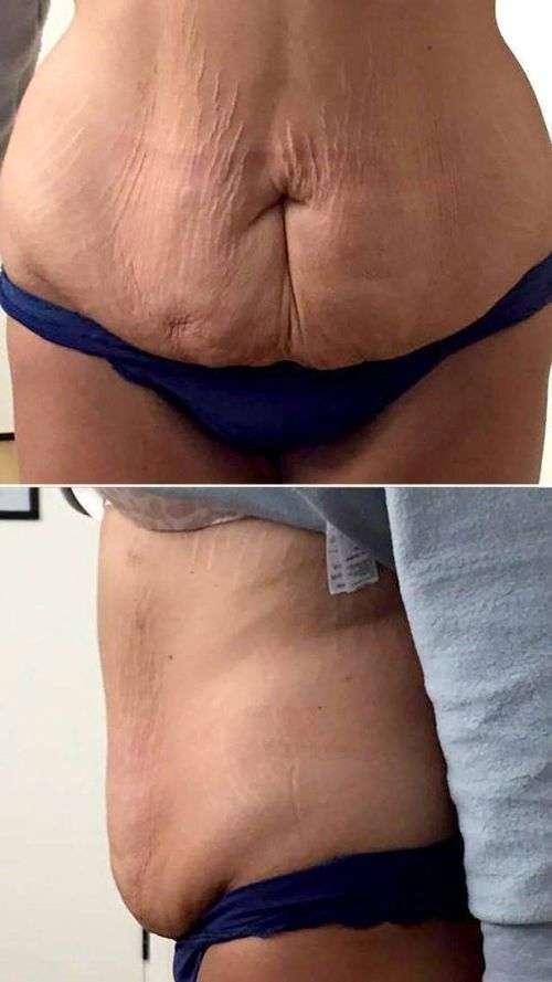 Девушка похудела на 82 кг (15 фото)