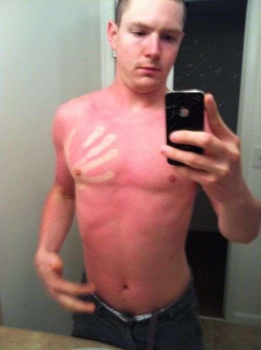 Сложно переоценить пользу от солнцезащитного крема, посмотрев на этих сгоревших граждан (12 фото)