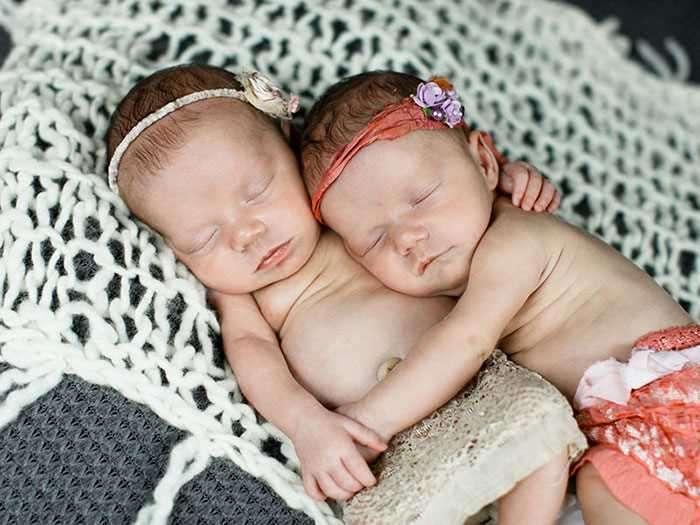 Близняшки, родившиеся держась за руки, и спустя 2 года невероятно близки (7 фото)
