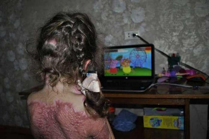 Пятилетняя девочка подожгла себя, мечтая стать феей Винкс