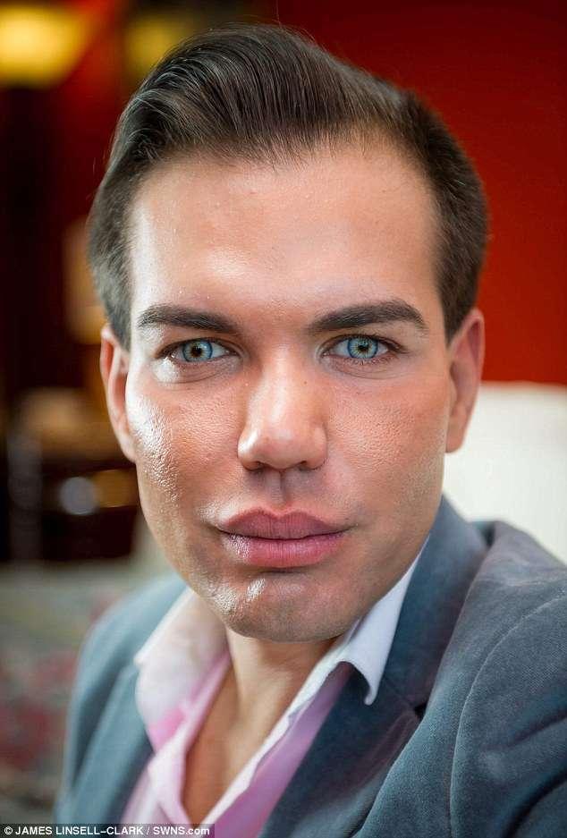 Живой Кен завязал с пластикой, когда чуть не остался без носа после 43 операций