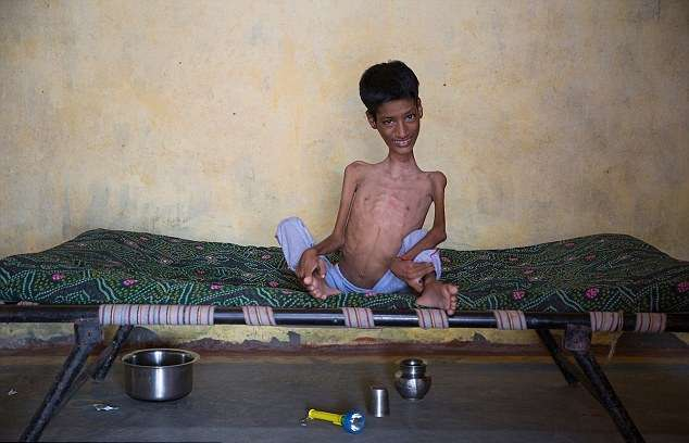 Мальчик с «резиновой» шеей умер через 8 месяцев после операции, изменившей его жизнь