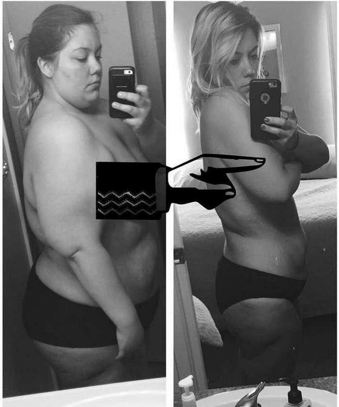 Обратная сторона похудения