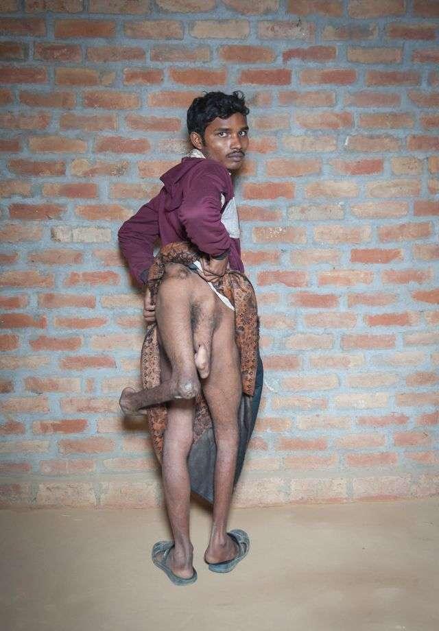 Молодой индиец просит врачей избавить его от лишних конечностей (10 фото)