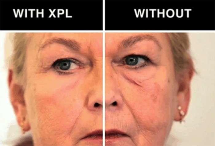 Вторая кожа: как выглядит самое эффективное средство против морщин