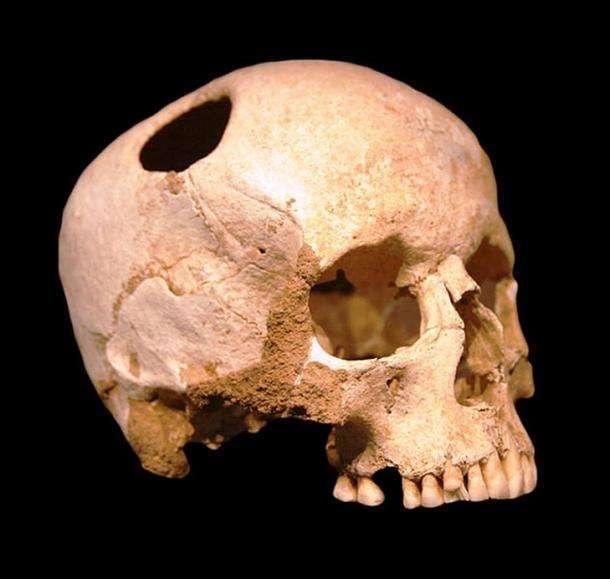 Продырявленные черепа возрастом более 4000 лет найдены на территории России