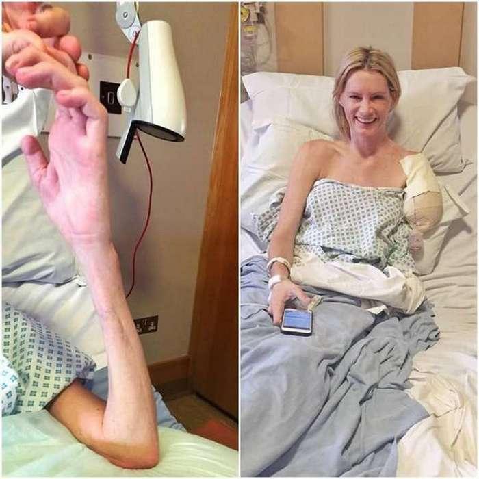Дублёрша Миллы Йовович лишилась руки после трюка для фильма «Обитель зла 7»