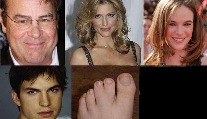 Третий сосок, лишний палец, заячья губа — у звёзд тоже есть дефекты