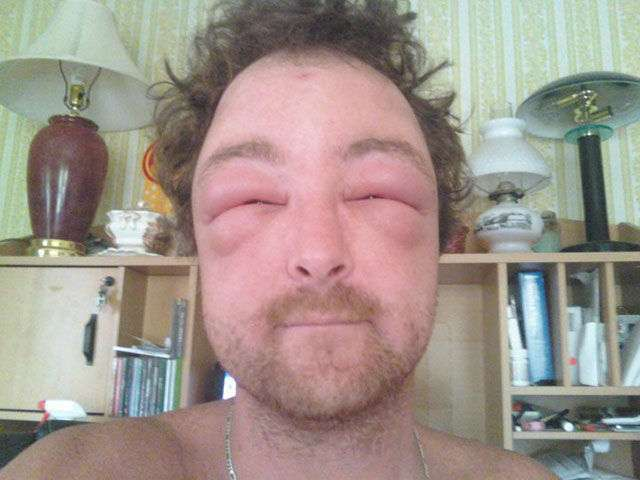 Последствия укусов пчел (20 фото)