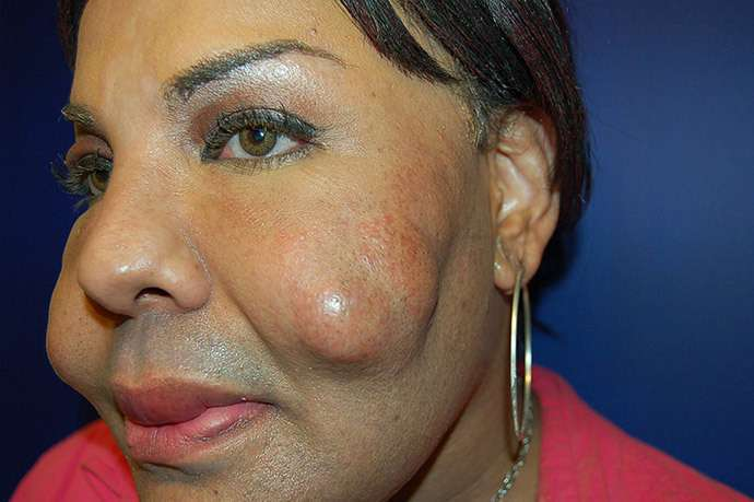 Жертва нелегальной пластической хирургии готова к любви (4 фото)