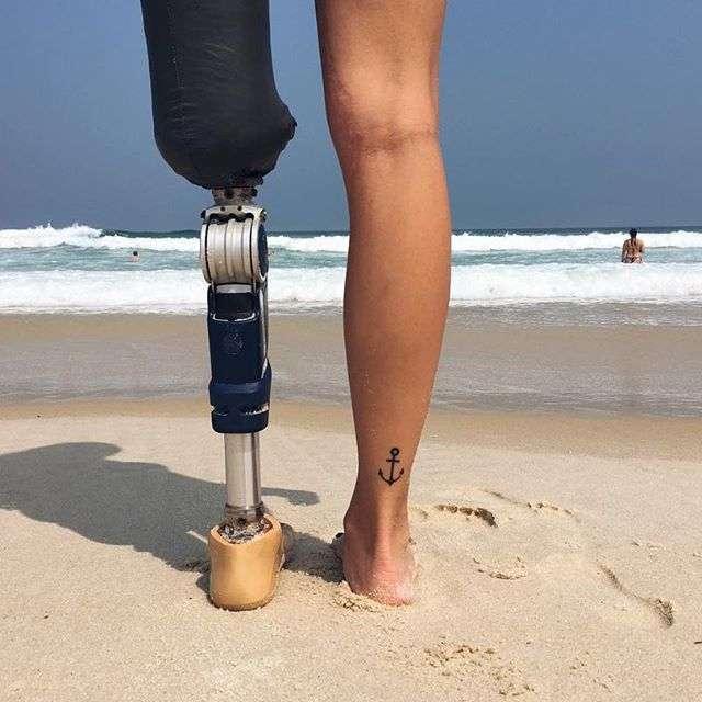 Девушка лишилась ноги, но это не помешало ей стать моделью (27 фото)