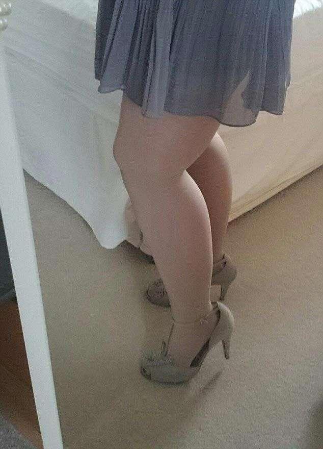 Женщине пришлось откачать 12 литров жира с бедер, чтобы её ноги стали выглядеть нормально (7 фото)