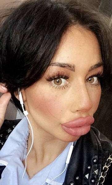 Девушка потратила более 2000 долларов на увеличение губ (11 фото)
