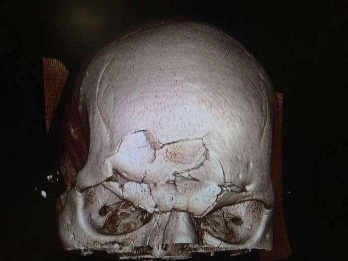 Нокаут с проломом черепа