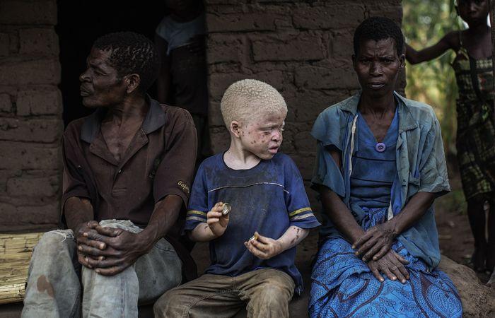 25 любопытных и невероятных фактов о людях-альбиносах
