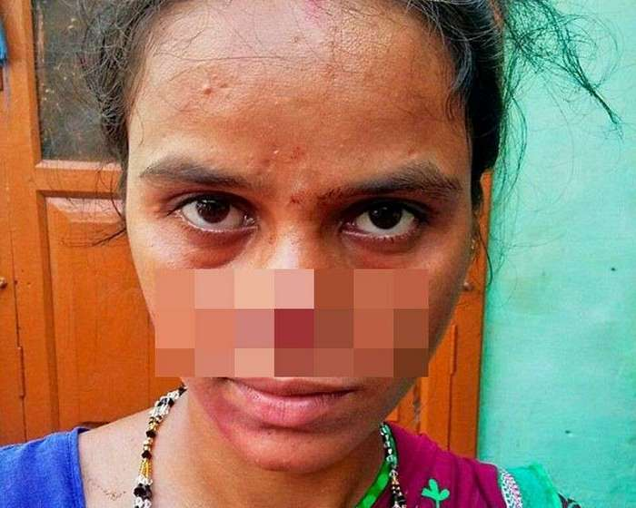 Обидевшись из-за приданного, индиец отрезал жене нос и сбежал с ним