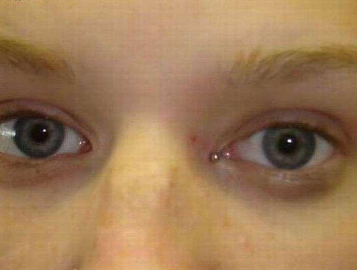 Пирсинг глаза (11 фото)