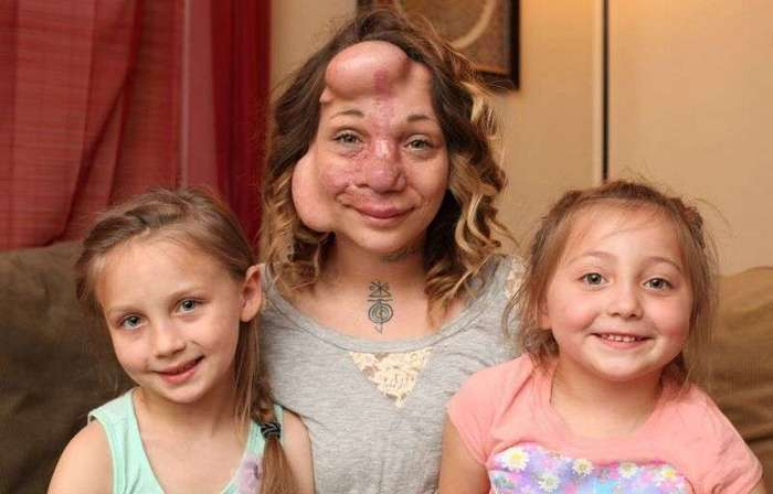 Женщине вшили под кожу надувные шарики, чтобы избавить от тяжелой болезни (11 фото)
