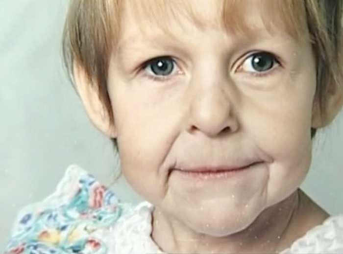 Отец покинул семью, увидев лицо новорожденной дочери. Но когда она выросла, случилось чудо! (9 фото)