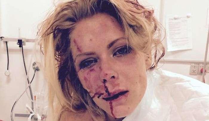 Датчанка заплатит штраф за то, что помешала беженцу себя изнасиловать (2 фото)