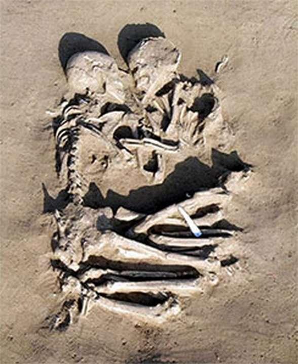 Что такое «парадоксальное раздевание» или перед смертью не нароешься