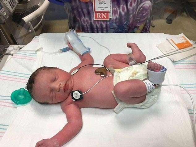 Эта девочка родилась дважды (5 фото)