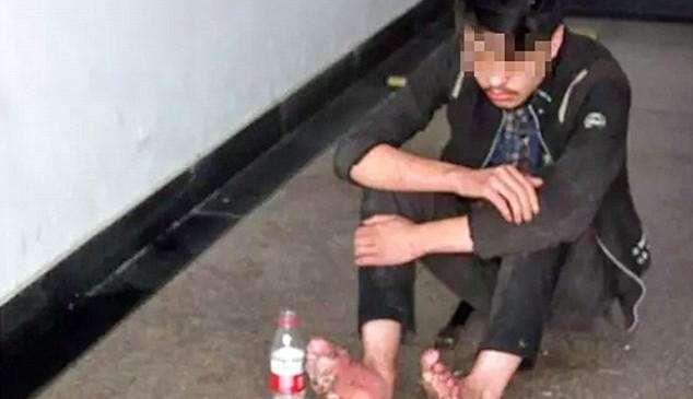 У геймера из Китая сгнили ноги после 6-дневнего игрового марафона