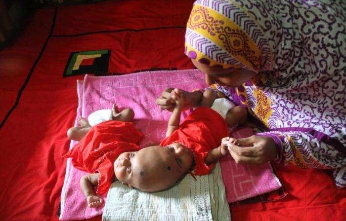 В Бангладеш родились близнецы с одной головой на двоих (9 фото)